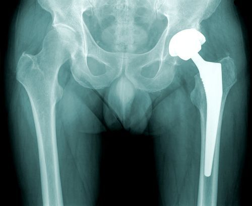 If you have become a victim of the DePuy hip replacement recall call your Wisconsin personal injury lawyer.