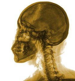 Any wound that pierces the skull can cause an open head injury to the brain