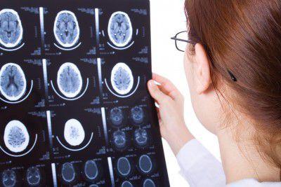 anoxic hypoxic brain injury