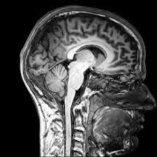 Childhood development and brain injuries