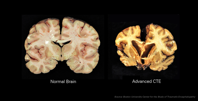 brain with CTE and normal brain