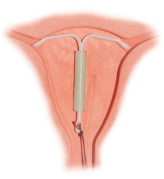 mirena iud injury