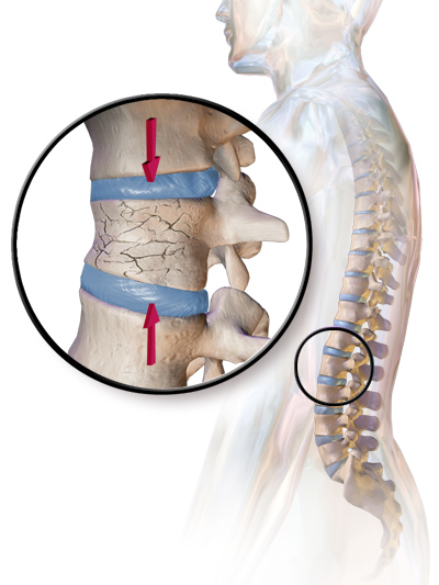 compression fracture in spine