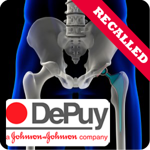 depuy hip replacement lawyer seattle washington