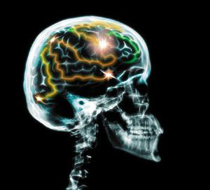 Traumatic brain injury from concussion