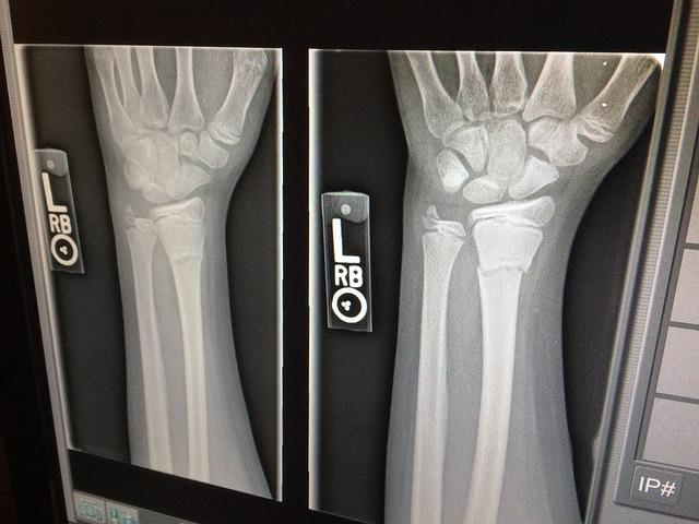 x-ray of human hand and wrist
