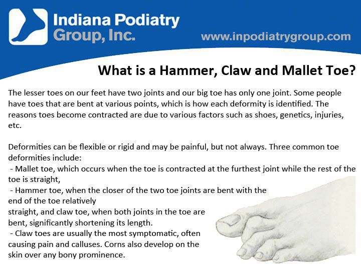 hammer toe vs claw toe. what are a hammer, claw and mallet toe? hammer toe vs 6