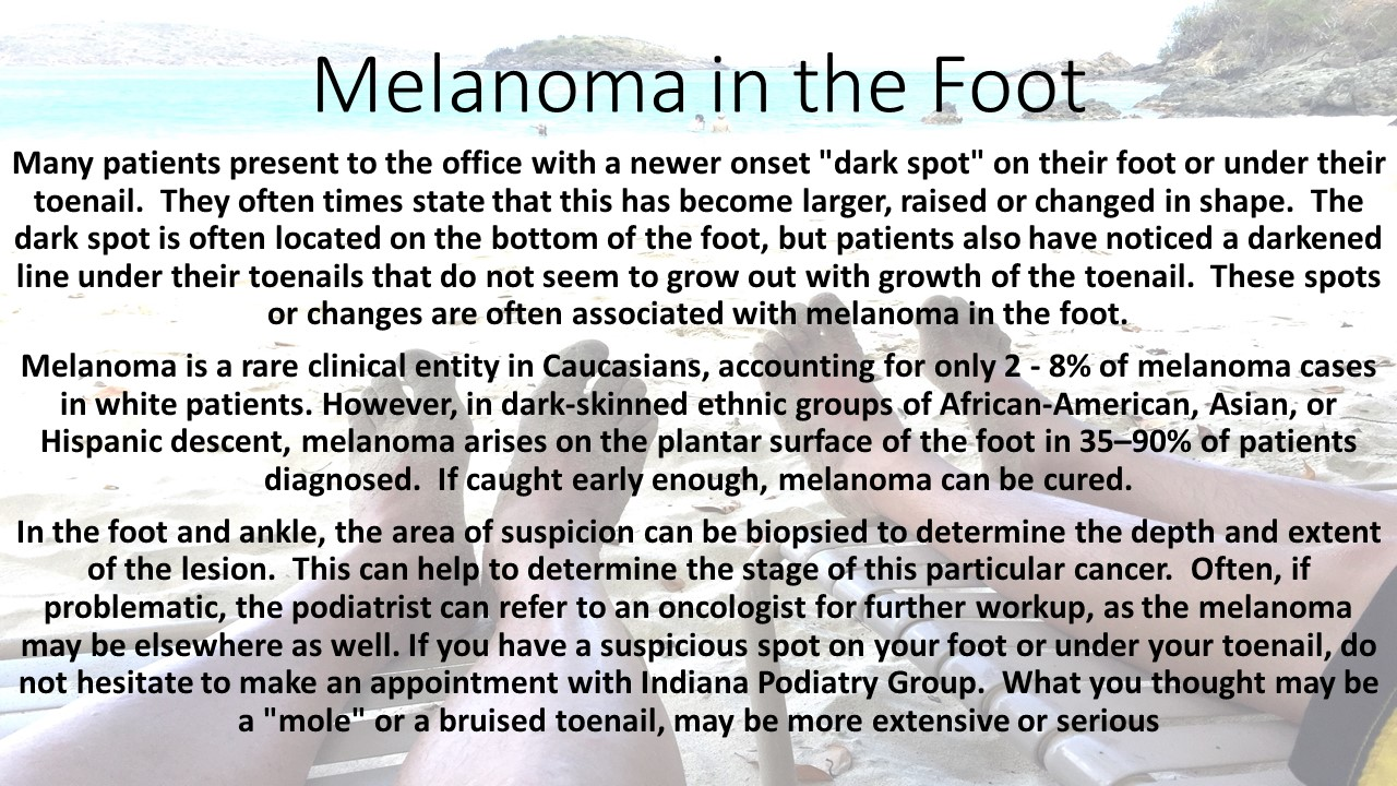 Melanoma in the Foot | Indiana Podiatry Group