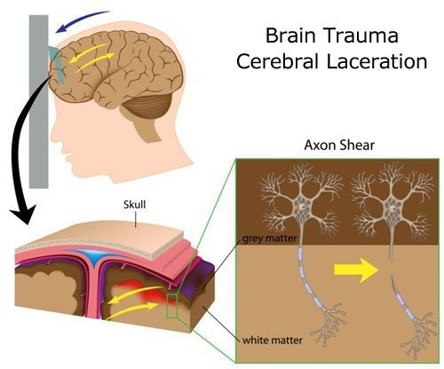 Medical Diagram of Cerebral Laceration