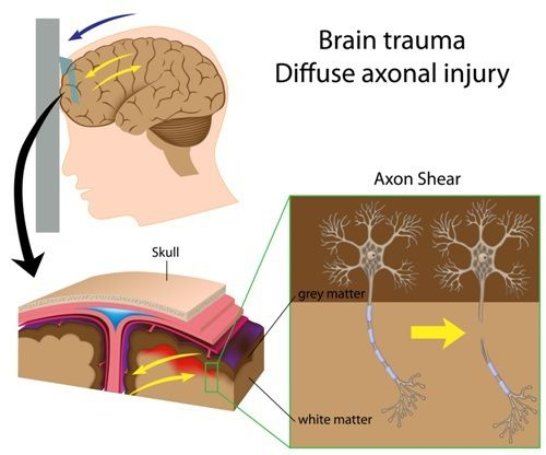 Medical Diagram of Difuse Axonal Injury