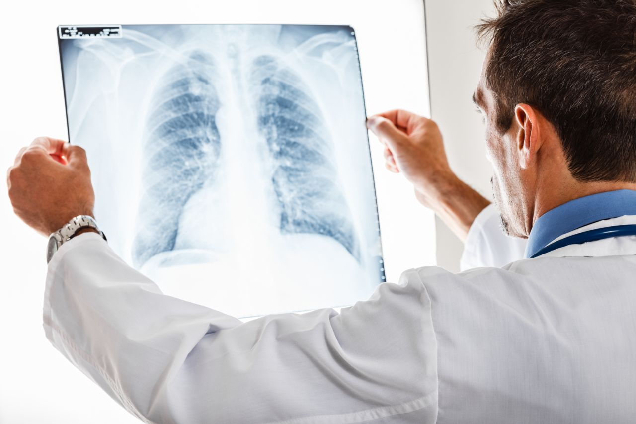 Doctor Looking at an X-ray of the Patient's Lungs