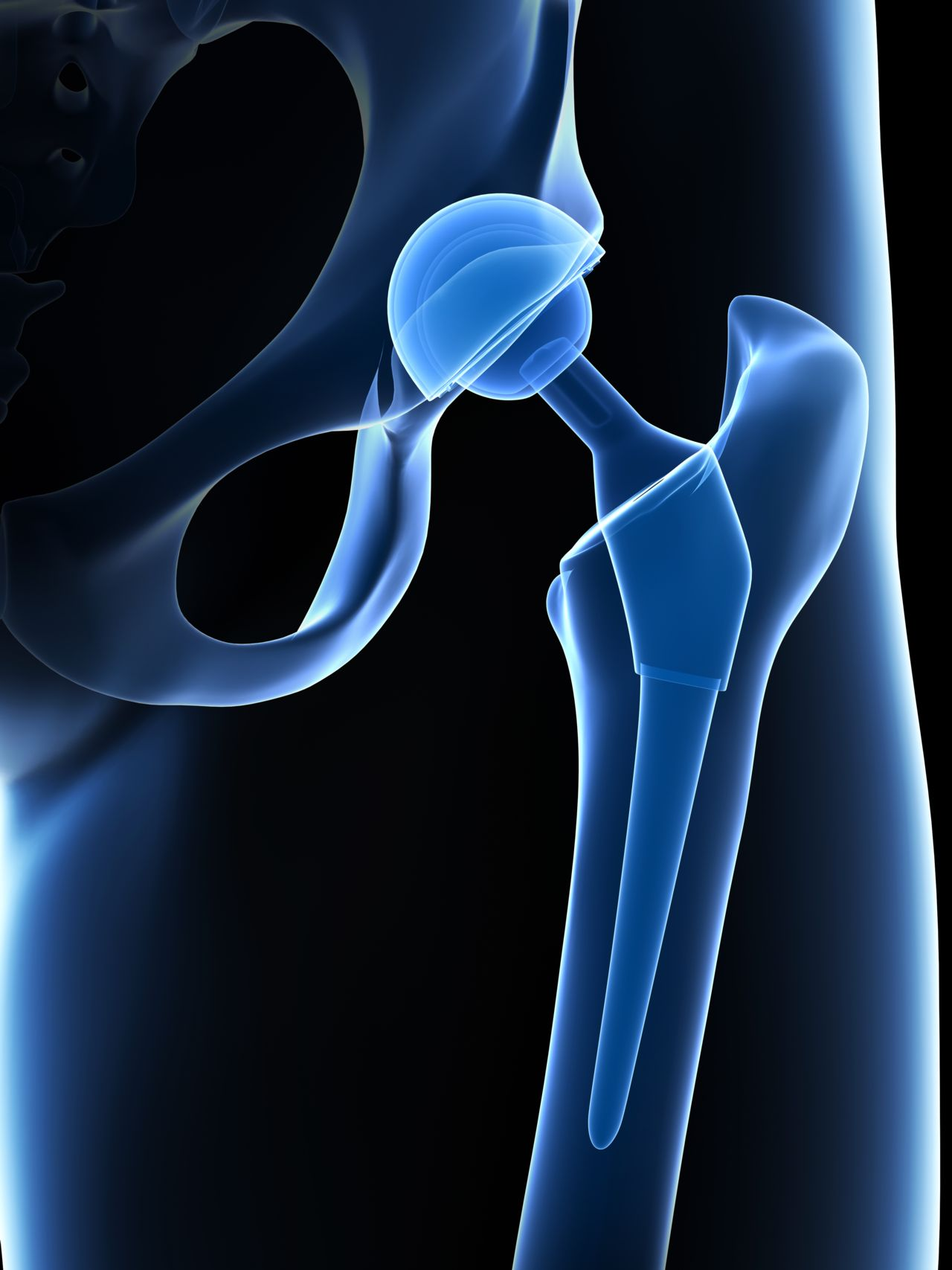 X-ray of Hip