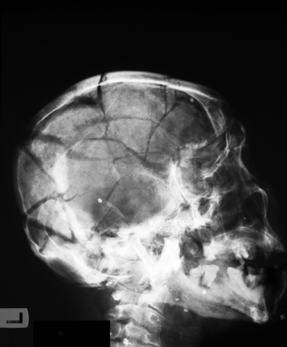 X-Ray Showing a Scull Fracture