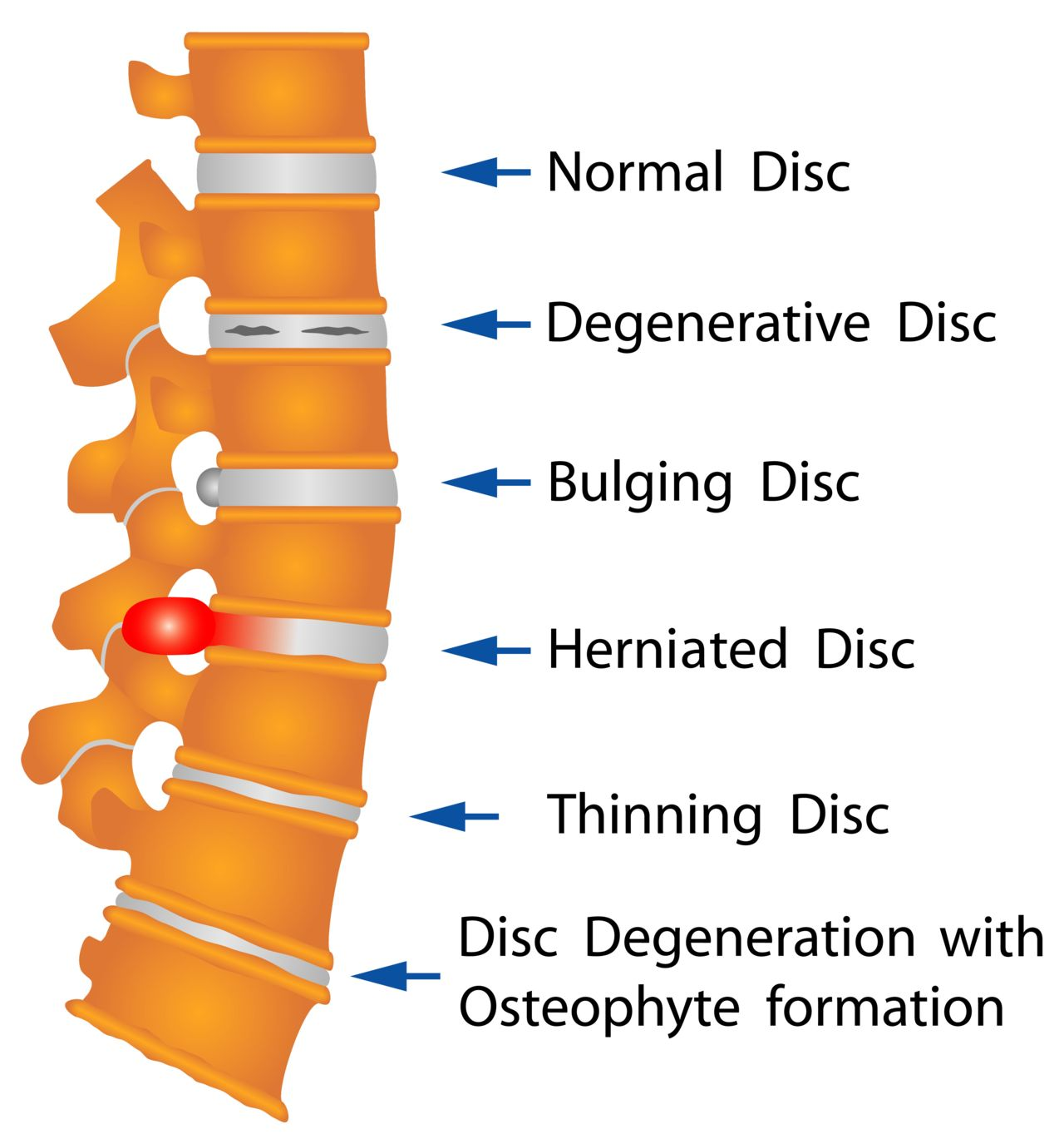 Diagram of the Spine