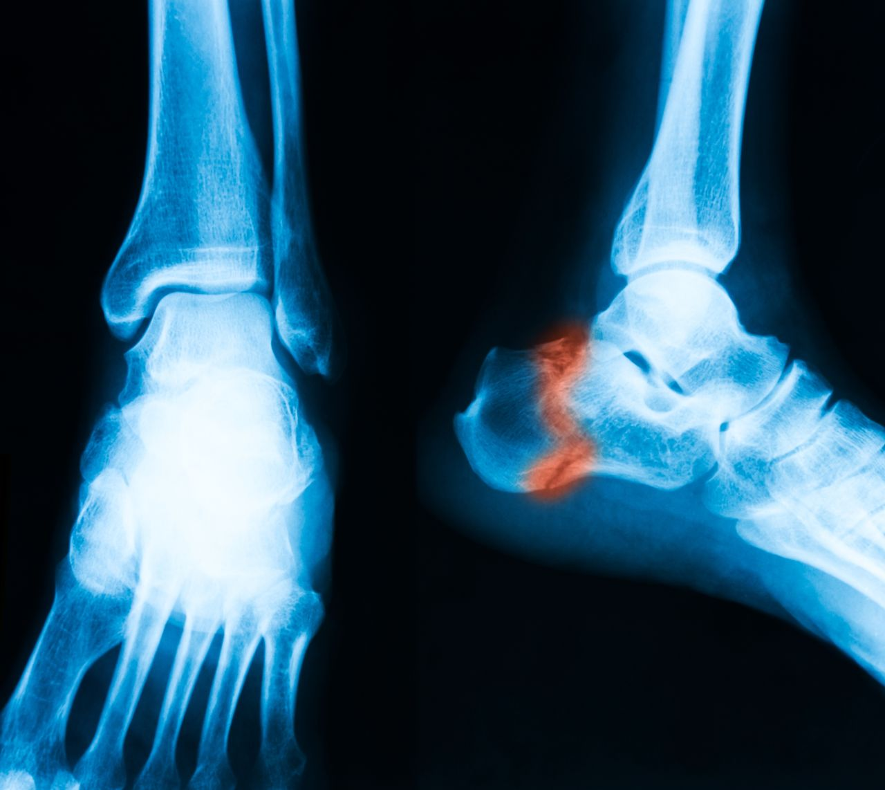 X-ray of a Talus Fracture