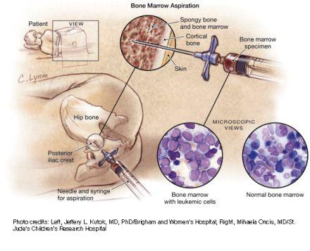 permanent injury from bone marrow biopsy, Skeleton
