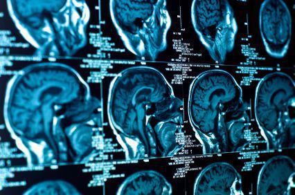 Kansas City Brain Injury and Spinal Cord Injury Attorney