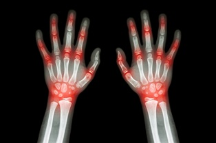 Arthritis Sufferers May Be Able to Benefit From Social Security Disability