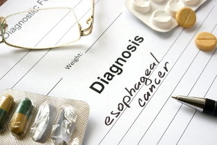 esophageal cancer diagnosis ss benefits