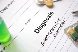 Pancreatic Cancer Diagnosis