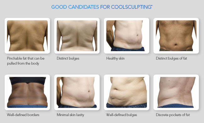 Good candidates for CoolSculpting