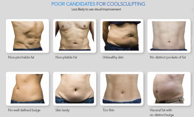 Poor Candidates for CoolSculpting