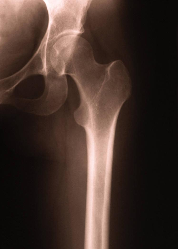 depuy hip replacement lawsuit sc