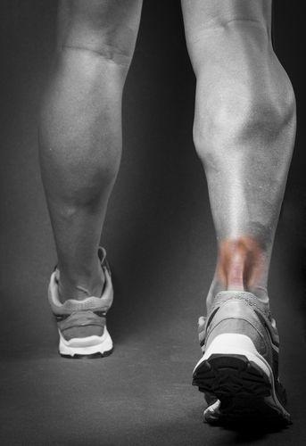 Achilles Tendonitis pain.