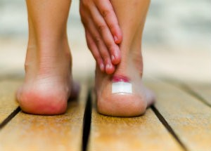 Painful Blisters
