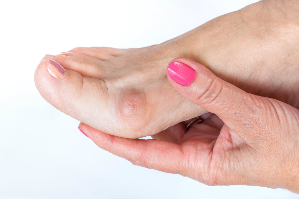 Stop the pain with bunion surgery!