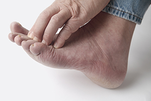 Diabetic Foot Exams