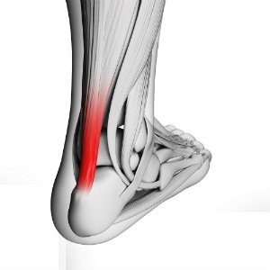 Over-stressed achilles tendon