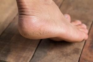 Dry, cracked heels