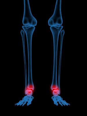 Ankle Fractures Prevention And Treatment Mcdowell Orthopedics