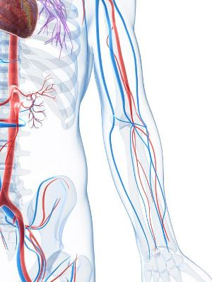 IVC filters may cause vascular problems