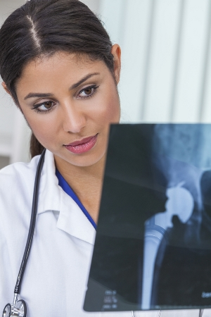 Doctor looking at xray of a hip implant