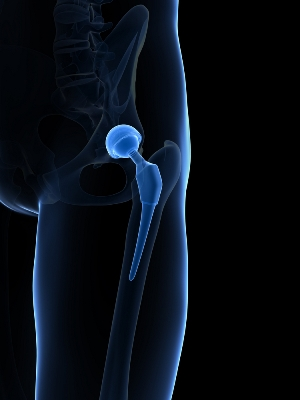Illustration showing metal hip implant