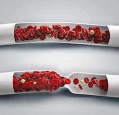 blood flow, blood clot