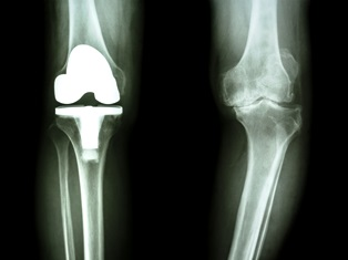Complications with the DePuy Attune knee system