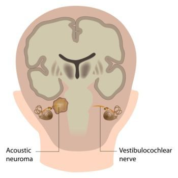 Location of Acoustic Neuroma