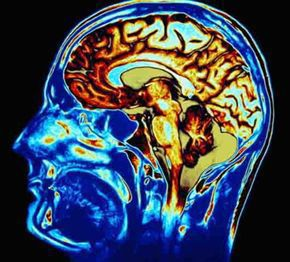 traumatic brain injury scan