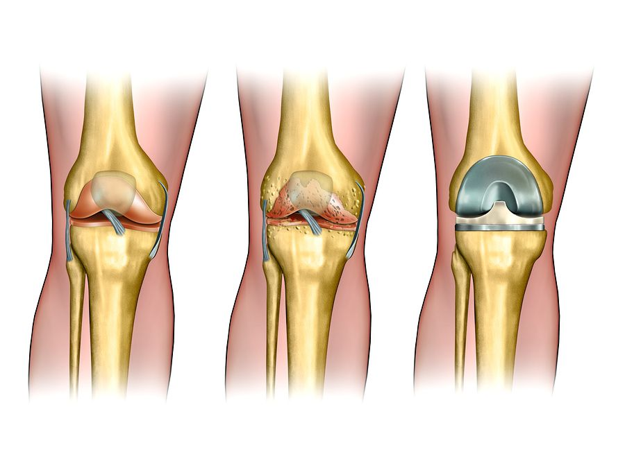 4 Key Facts About Knee Replacement Surgery | Manfred F. Ricciardelli ...