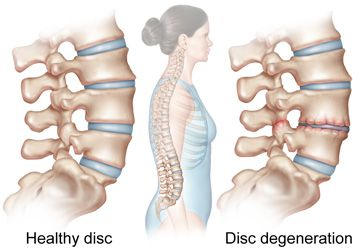 Healthy spinal disc vs. degenerative spinal disc