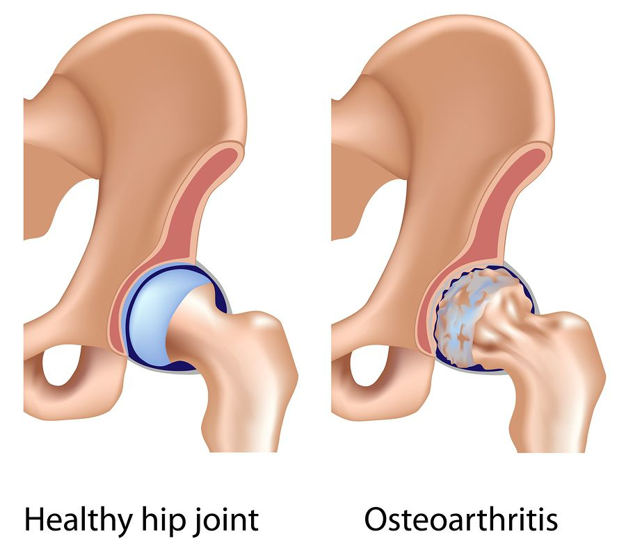 hip joint injuries