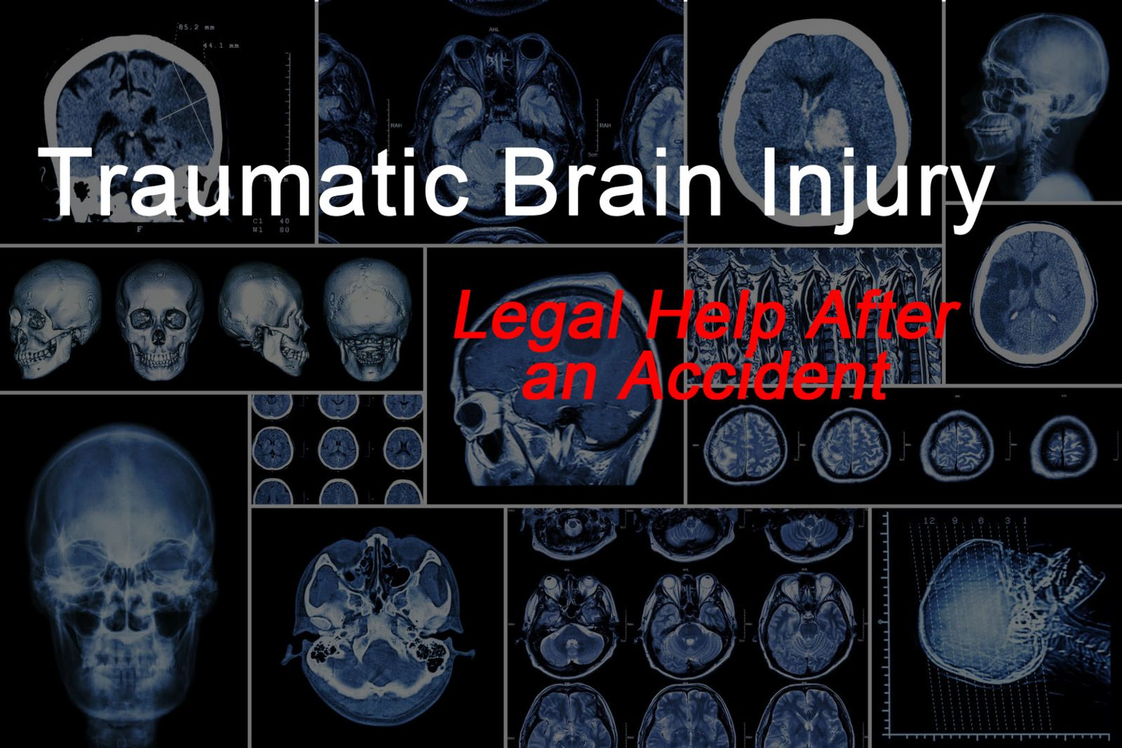 lawyer assistance after traumatic brain injury