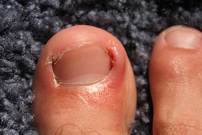 Particularly stubborn cases of ingrown toenails might require surgery to eliminate for good