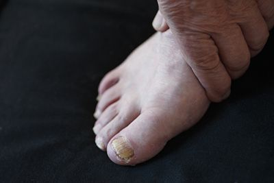 Laser therapy can treat fungal toenails.
