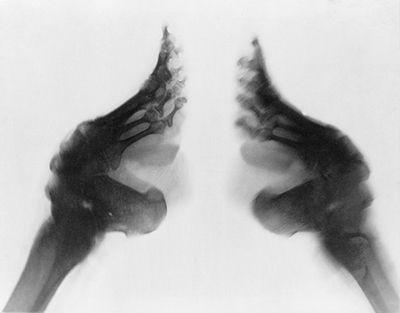 Foot deformity x-ray.