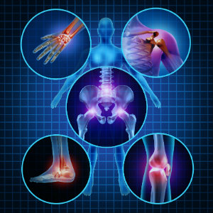 Types of Arthritis