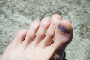 Injured toenail from shoes